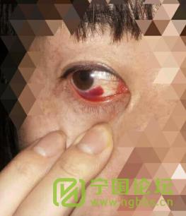 面对渣男,我该如何保护你——我的姐妹 - 宁国论坛 - QQ图片20170819145042.png